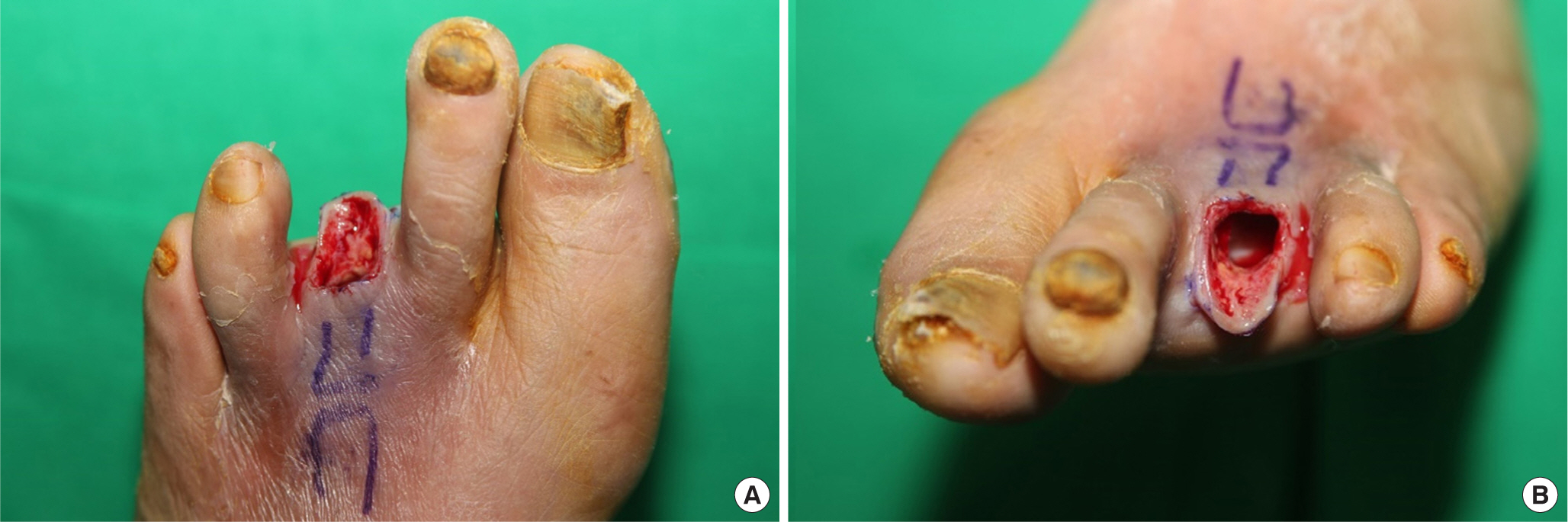 Modified Toe Amputation Reduces Hematoma Rate in Diabetic